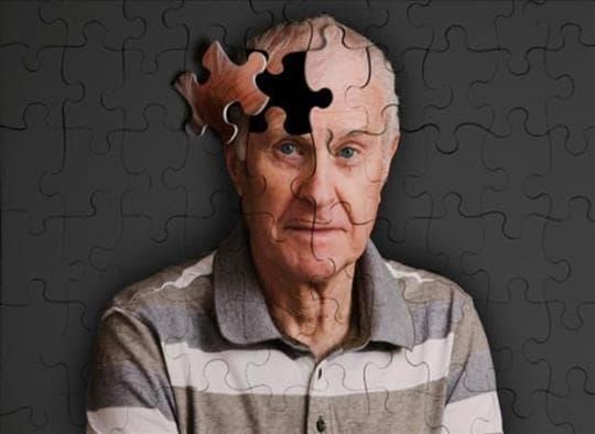 Тяжелая деменция - Альцгеймер