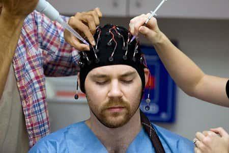 Причины возникновения эпилептических припадков