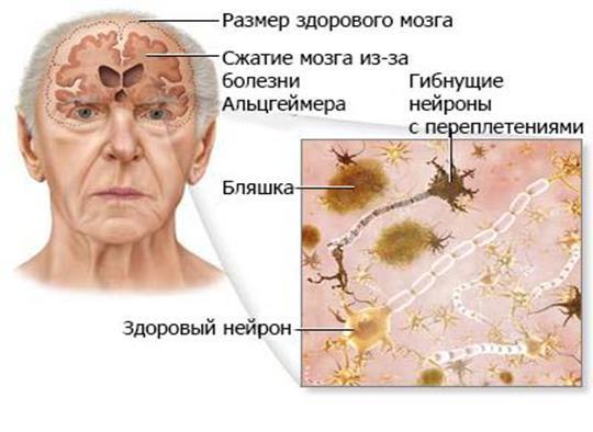 Нарушение функцый головного мозга