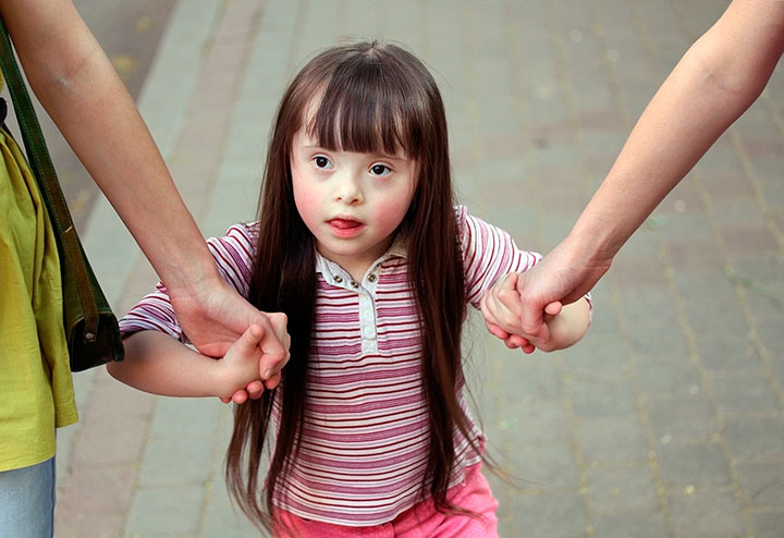 Дебильность у детей